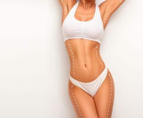 Things to Consider Before Liposuction Operation