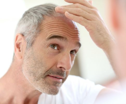 Coping with Male Pattern Baldness